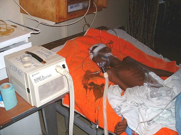 Child with sepsis at a hospital bed